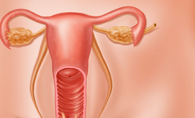 Tudo sobre o câncer de ovário