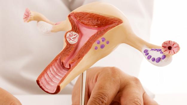 Até 50% das mulheres podem sofrer com miomas